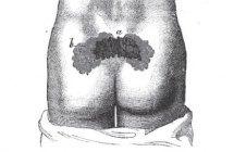 Las úlceras por presión a lo largo de la historia